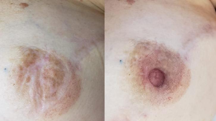 A reconstrução do bico do seio respeita a cor e o tamanho da aréola de cada mulher
